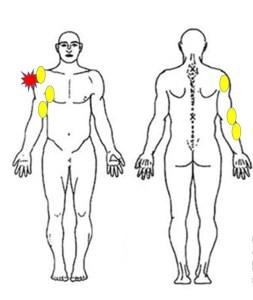 仙台の整体で肩の痛みに筋膜リリースを行うルーツ