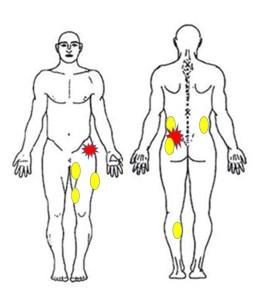 仙台の整体で産後の骨盤矯正に筋膜リリースをするルーツ