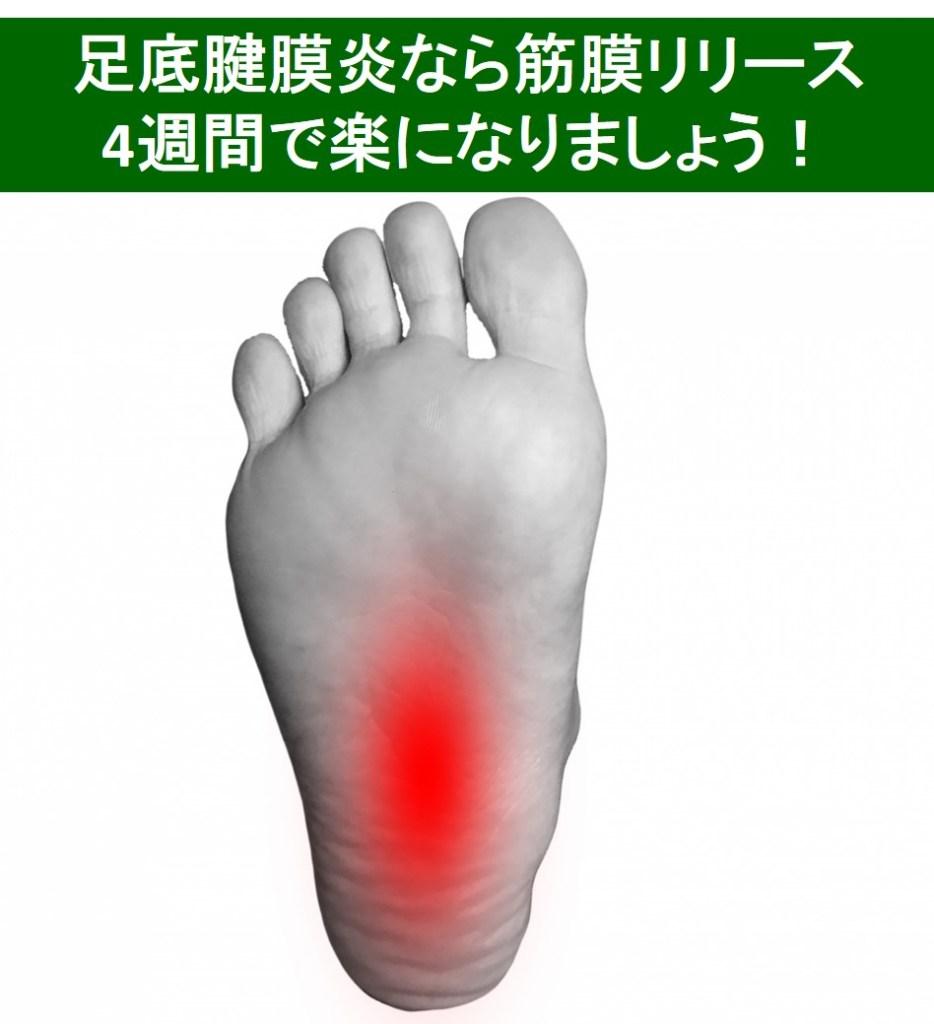 足底腱膜炎に筋膜リリースが良い理由