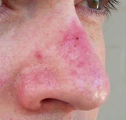Nose Bumps fibrous papules electro-cautery : Rosacea Support