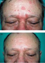 seborrheic-dermatitis-metrogel