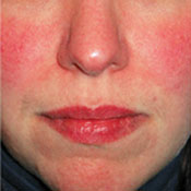 rosacea-red-face