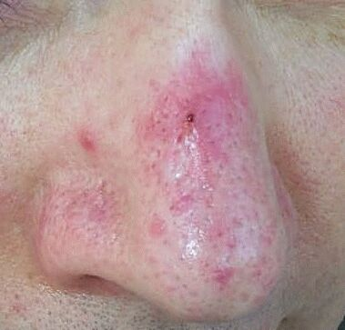 Pictures Of Rosacea 114