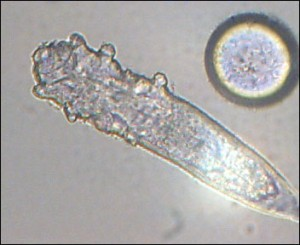demodex-mite
