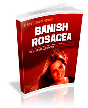 banish-rosacea-robert-campbell