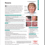 Just Diagnosed: JAMA Rosacea Patient Page