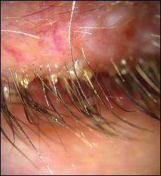 cylindrical-dandruff-eyelash