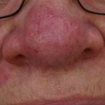 Terry's Rosacea Story