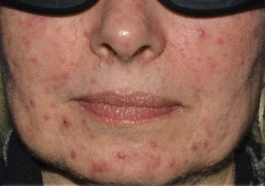 Foamix Presentation Jan 2017_Rosacea1 cropped