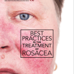 Best Practices for Treating Rosacea