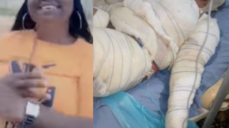 Woman dies after she was allegedly set ablaze by her husband because she insisted on travelling for her mother's burial preparation