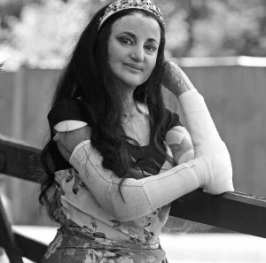 a black and white photograph of Myra Ali standing by a railing, she has dressings and bandages on her shoulders and armssings and