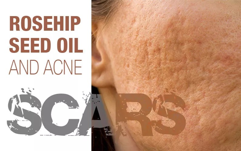 Rosehip Seed Oil and Acne Scars