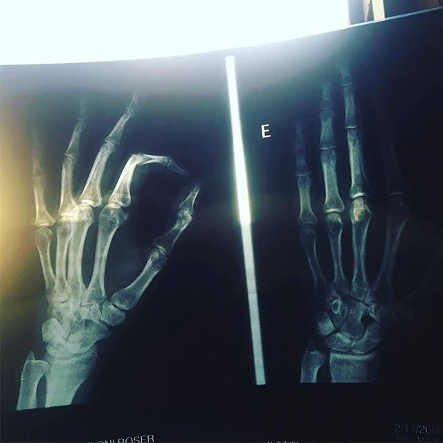 radiografia de roser amills