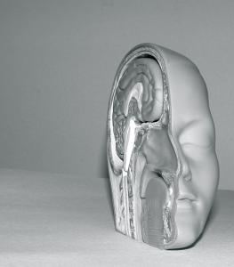 inside-head-psychiatrist-therapist