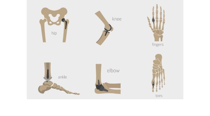 Orthopedic Implants, Part 1 – Surface Finishing Enhances Component Life, Function