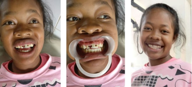 Rozanne sports a broad smile after a successful dental procedure.