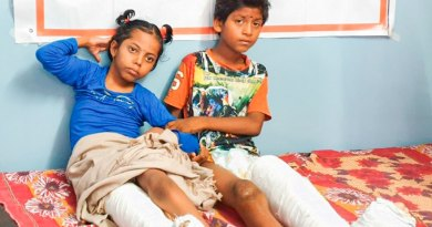 Children on a hospital bed after correctional surgeries.