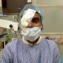 40 patients get free corneal graft in Hoshiarpur