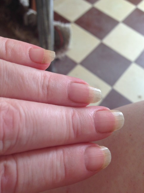 Beautiful fingernails after months of inactivity. Gone now