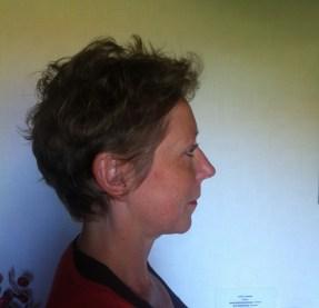 Profil Apres