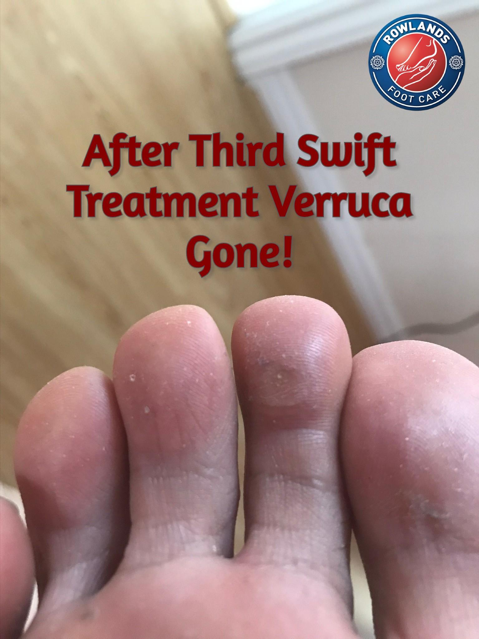 1 Amazing Swift Verruca Treatment Cambridge 7