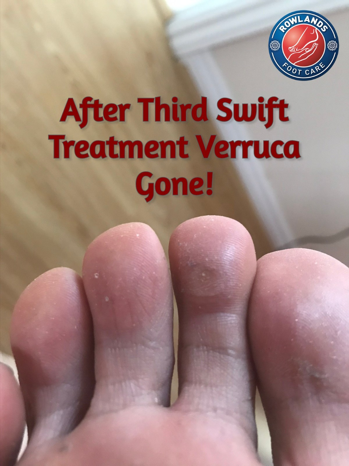 1 Amazing Swift Verruca Treatment Cambridge 7