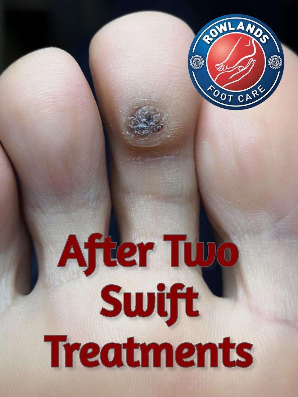 1 Amazing Swift Verruca Treatment Cambridge 6