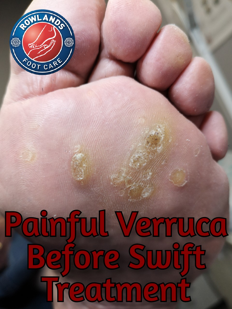 Painful Verruca Before Swift Treatment