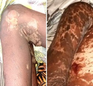 Edo girl, 9, rots away and dies after being' raped for rituals'