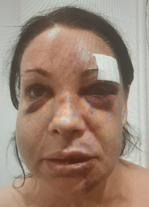 See horrific injuries mum who committed suicide, suffered at the hands of her dangerous obsessed ex who repeatedly beat her and spat on her (photos)