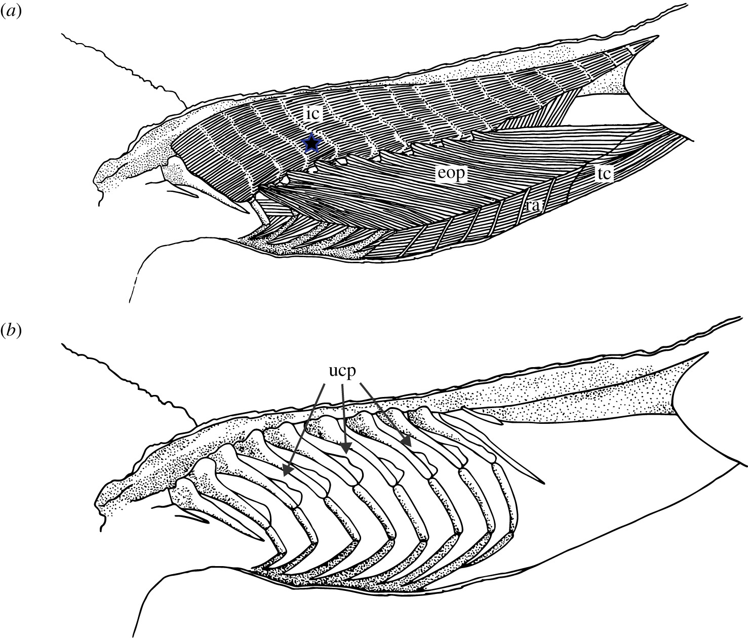 Diagram Of Emg Electrode Placement