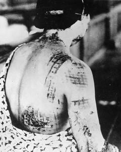 Japonka z oparzeniami spowodowanymi działaniem promieniowania cieplnego, które powstało podczas wybuchu bomby atomowej; widoczny wzór kimona okrywającego ciało w chwili wybuchu