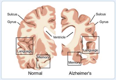 Image of Alzheimer's Brain