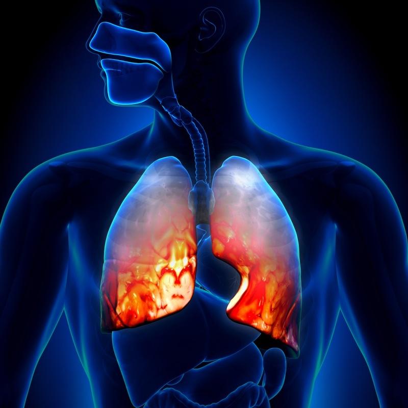 Penyebab Munculnya Penyakit Paru Paru Basah Atau Pneumonia