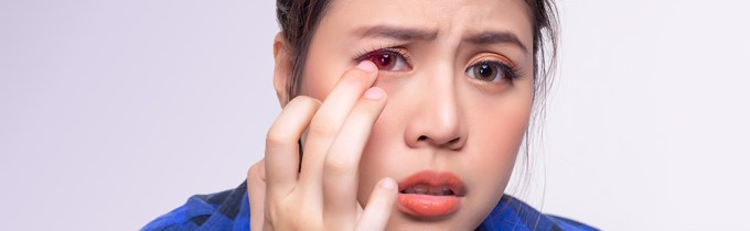 Corneal Abrasions: Causes, Symptoms, Diagnosis and Treatments