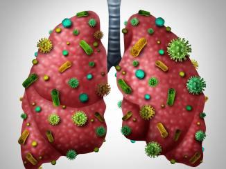 Pneumonia Infection