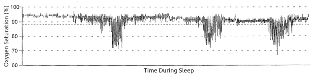 pulse oximetry sawtooth pattern