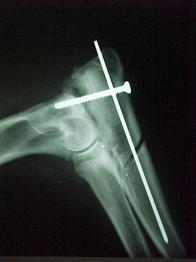 Ortopedie 015