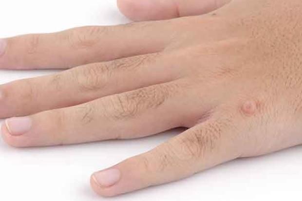 Костный нарост на кости фаланги пальца руки. Какие бывают бородавки на руках. Причины появления узлов Гебердена
