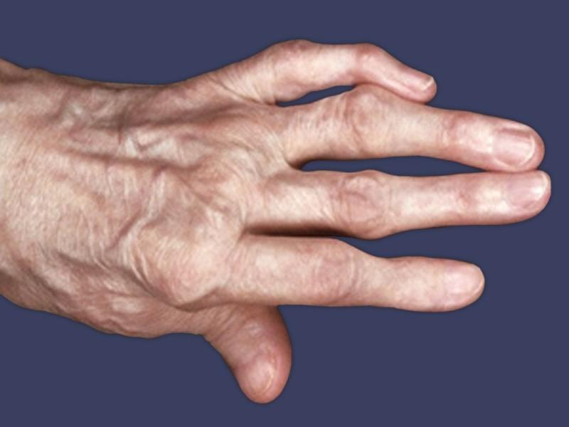 Артрит пальца руки что это фото