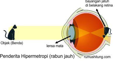 pembentukan bayangan pada penderita hipermetropi rabun dekat