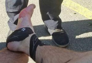 Blisters on an ultramarathon trail runners foot after a race