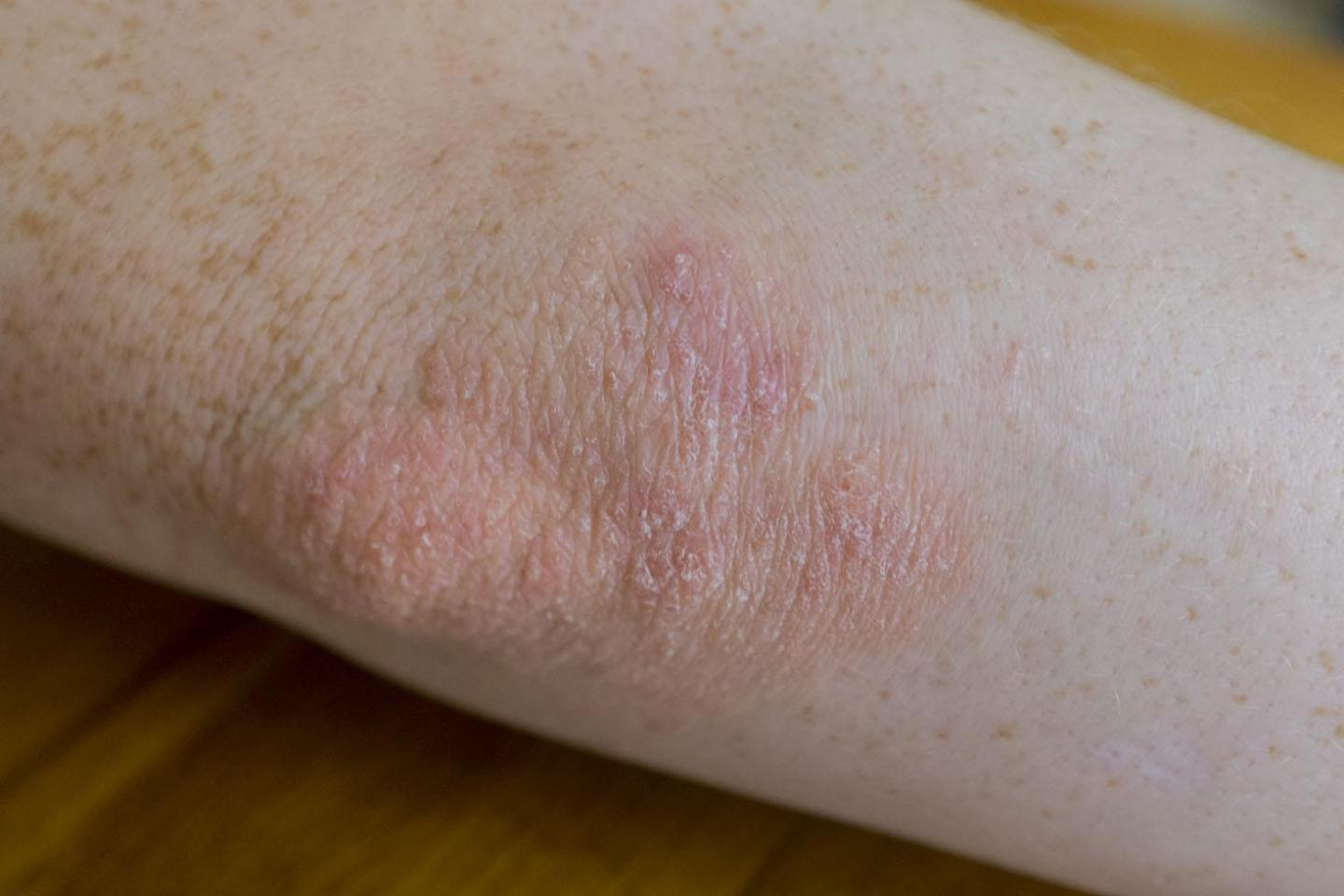 psoriasis. on an elbow