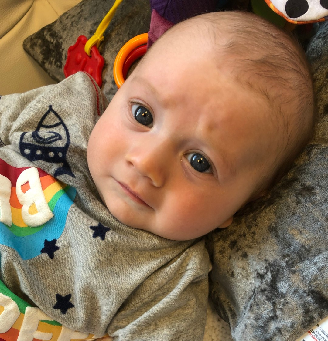 2 Vessel Cord – Our Experience with our Baby Boy