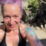 Abdominoplasty:  One Week Post-Op