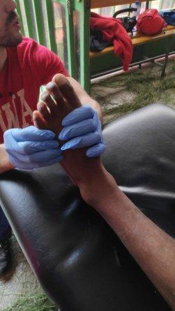 tratamiento-etiopia