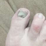 Big toenail going