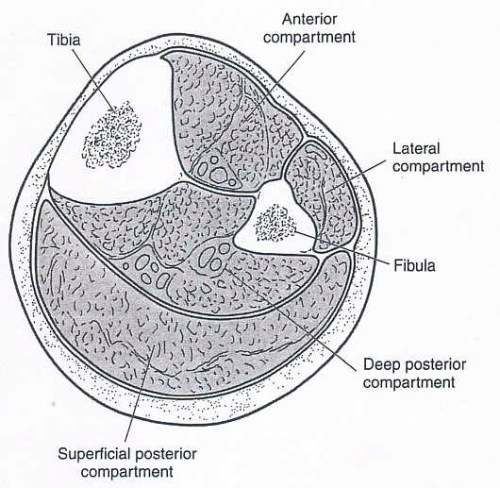 Exertional Compartment Syndrome