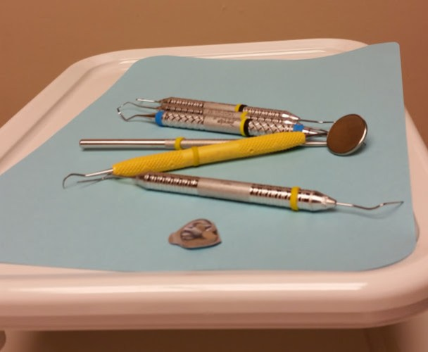 From my checkup at the Dentist last month. NOT my favorite view.
